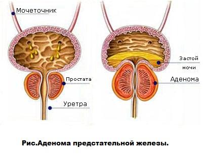 Аденома простаты и рак простаты симптомы